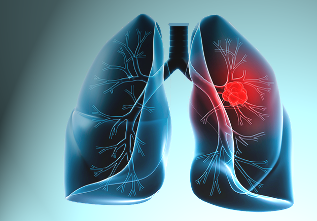 Akciğer Kanserine Çözüm