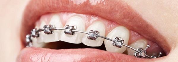 diş telinin önemi