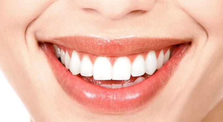 Diş Beyazlatma Neden Önemlidir